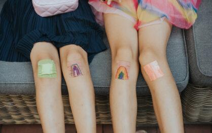 Zdarte kolana, czyli symbol udanych wakacji